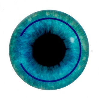 The surgery is performed to treat nearsightedness or myopia, hyperopia or farsightedness and astigmatism.